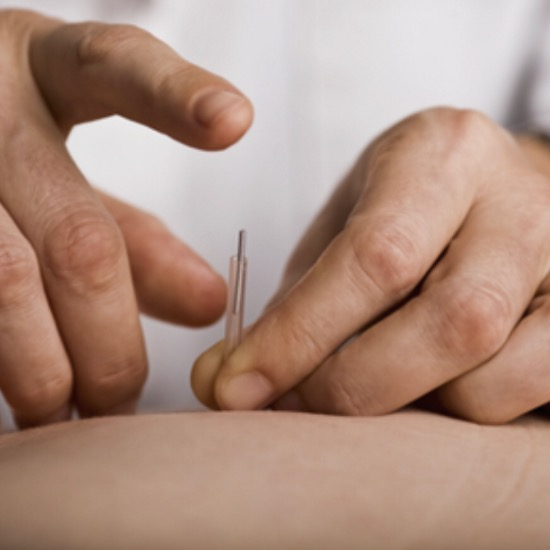 image of Advanced acupuncture